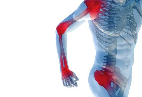 Боли в суставах лечение лекарственными растениями
