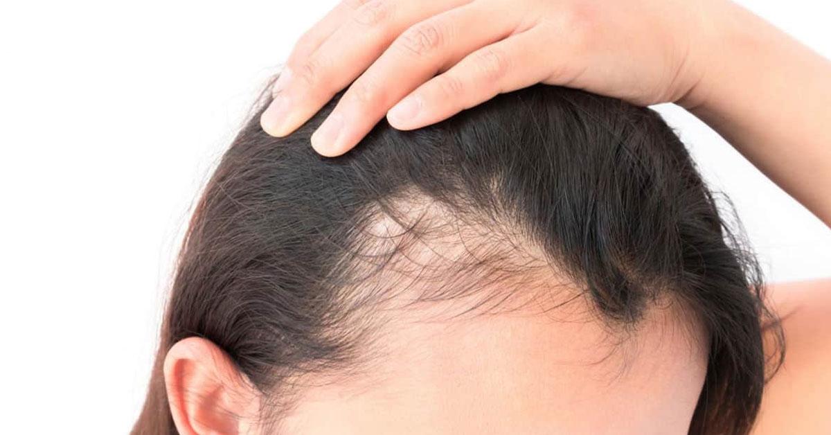 Останови выпадение волос: ТОП-10 продуктов для их укрепления и питания