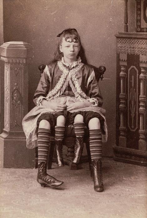 Неплакса Миртл: Как четырёхногая девочка-экспонат смогла войти висторию утончённой особой