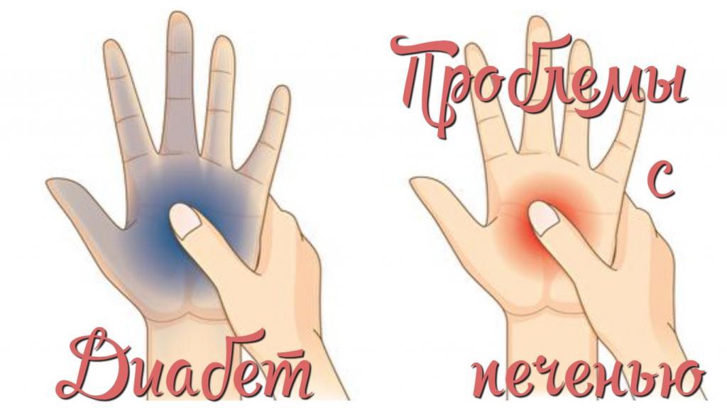 О проблемах с щитовидкой и многих других заболеваниях расскажут наши руки..