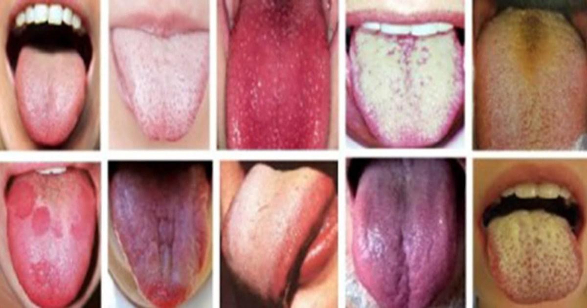 Как определить болезнь по языку?