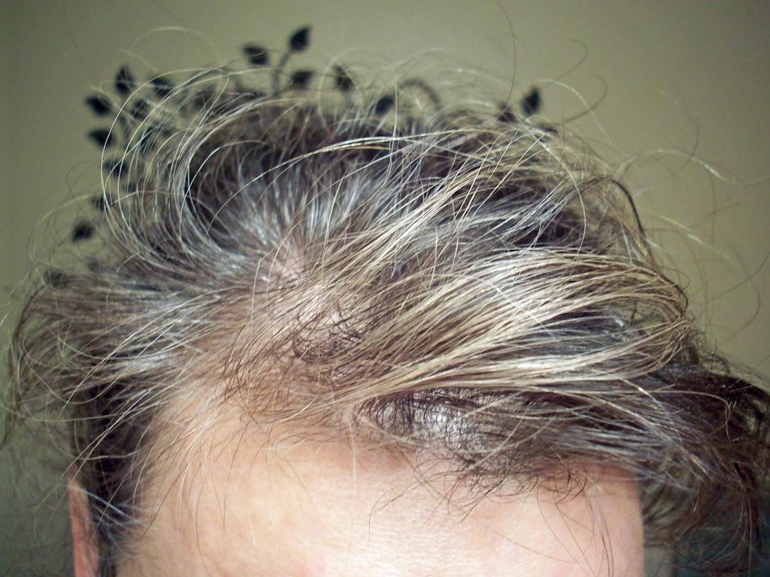 Я избавился от седины за 3 недели! Волосы просто восстановили свой цвет! Ловите рецепт!