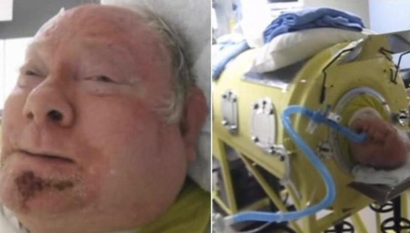 Из-за серьезной болезни мужчине приходится жить в специальном аппарате уже больше 60 лет