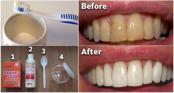 Как избавиться от зубного налета и отбелить зубы без дорогостоящих процедур!  Невероятный метод!
