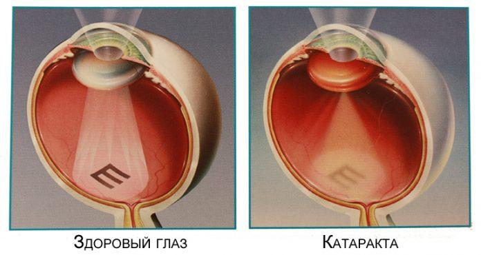 Масло, улучшающее зрение и лечит катаракту (как его использовать)
