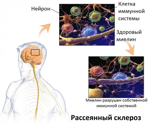 Атака рассеянного склероза