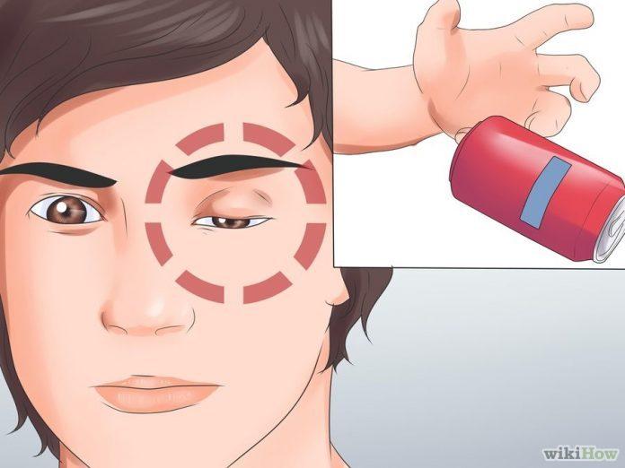 Тревожные знаки перед инсультом, которые обычно игнорируются