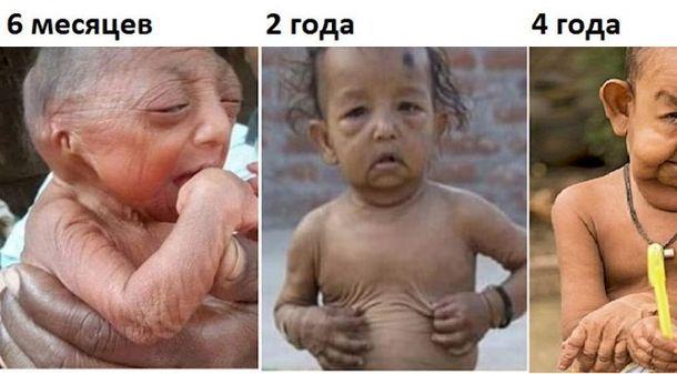 Самые редкие заболевания людей в мире с
