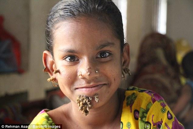 """Первая в мире """"девочка-дерево"""" появилась в Бангладеш"""