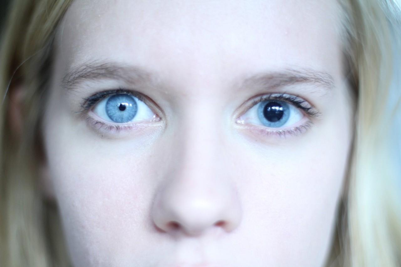 Что делать если один глаз больше другого фото