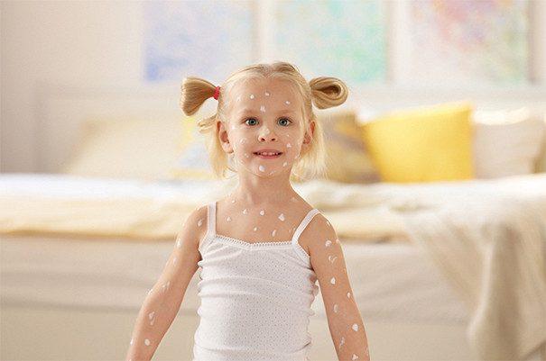 Кожные заболевания, которые обостряются у детей весной