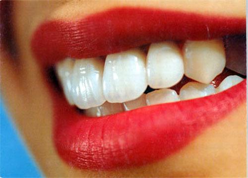 Отбеливание зубов своими силами