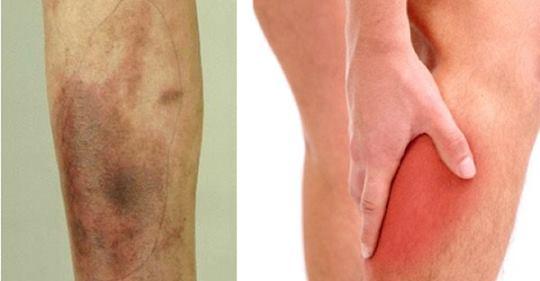 9 проблем со здоровьем ног, которые могут сигнализировать о серьезной болезни