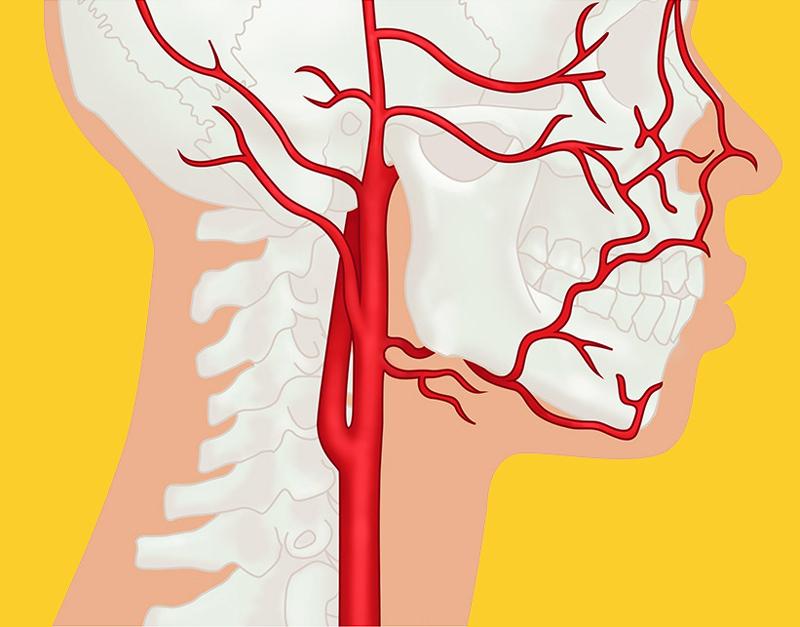 Почему возникают инсульт, инфаркт, варикоз, гипертония и гипотония