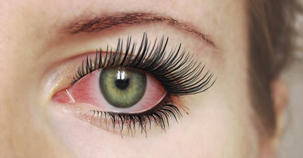 Нарощённые ресницы: какие последствия для глаз может вызвать данная процедура