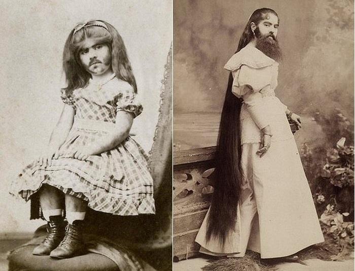 Энни Джонс (Annie Jones) цирковая артистка XIX века.   Фото: april-knows.ru.