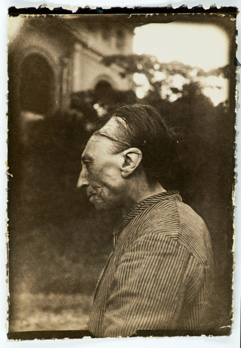 Умышленная модификация черепа, также известная как «тулузская деформация». | Фото: commons.wikimedia.org.
