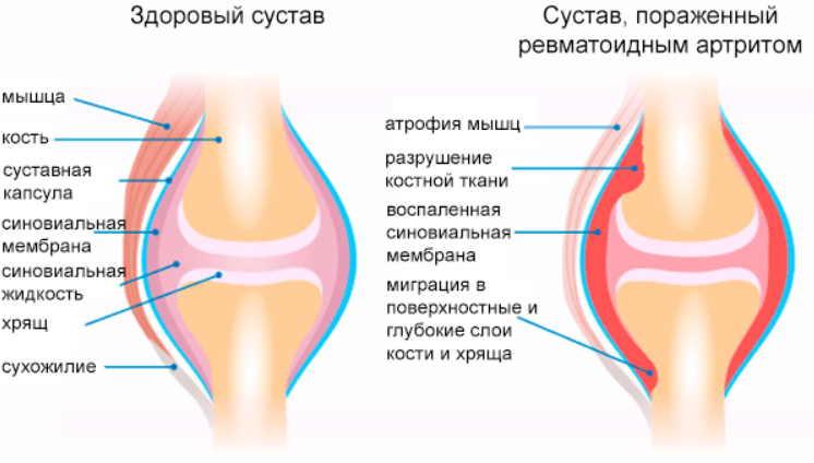 Ревматоидный артрит: народное лечение приносит облегчение! Если боль взяла в «плен» пора выбираться