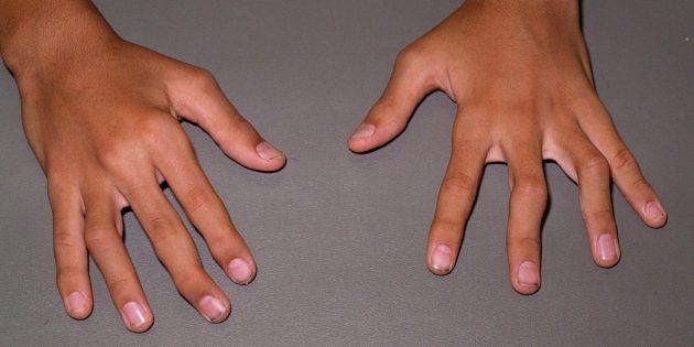 На поздних стадиях ревматоидного артрита возможны деформация и искривление суставов