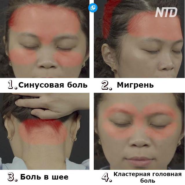 Китайцы считают, что есть 4 вида головной боли. Вот как избавиться от каждой из них
