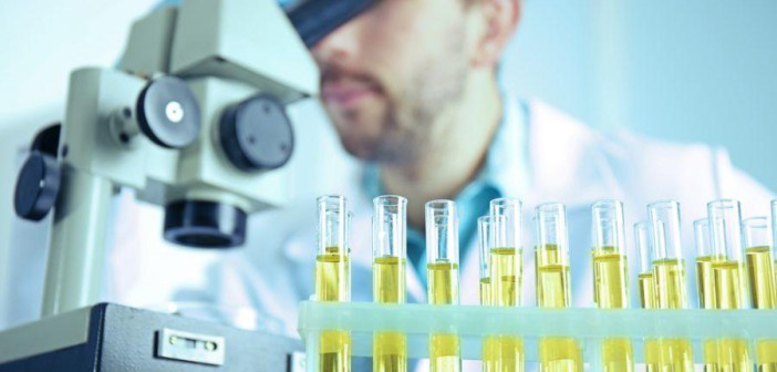 Анализ мочи поможет определить предрасположенность к раку мочевого пузыря