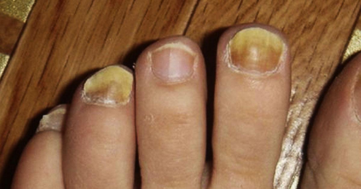 Домашние средства для лечения желтых ногтей с помощью 5 средств