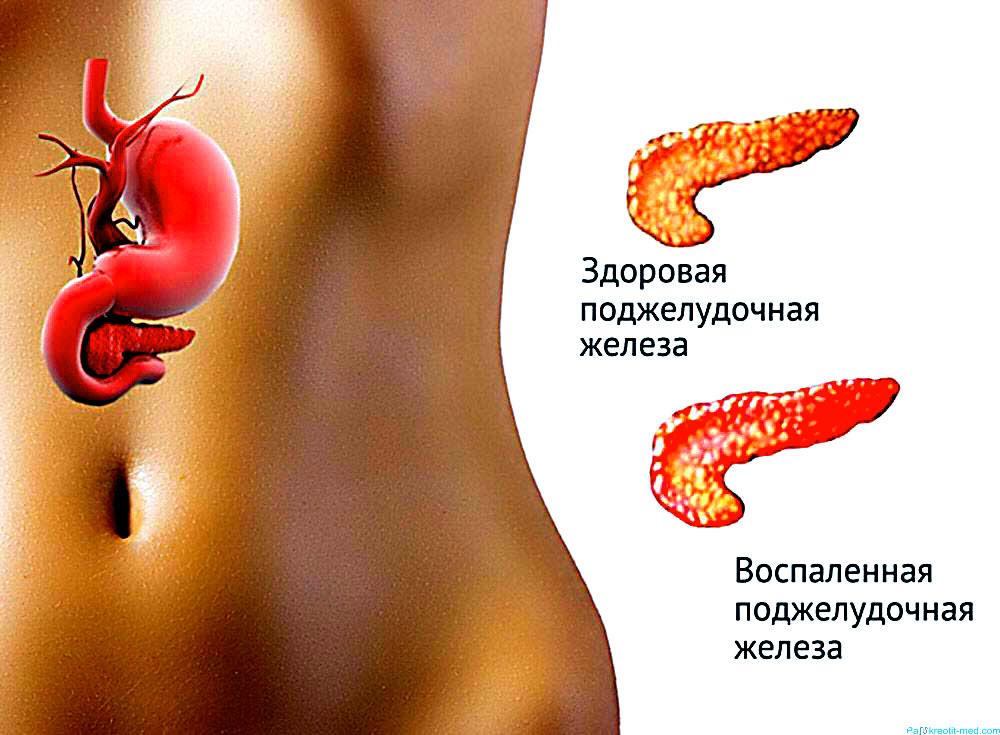 10 самых вкусных продуктов для здоровья поджелудочной железы