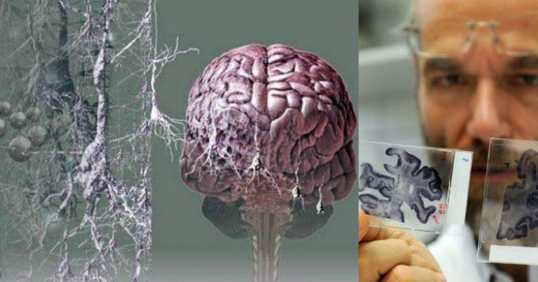 Основные симптомы старческого слабоумия