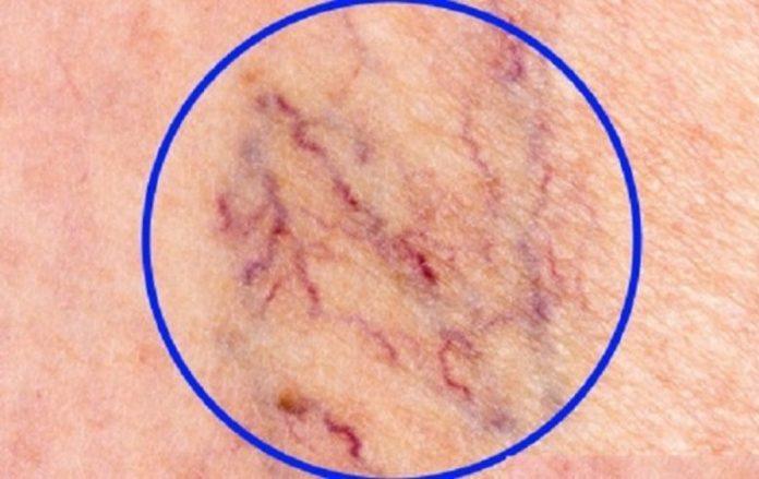 Уничтожаем «СОСУДИСТЫЕ ЗВЕЗДОЧКИ» на ногах без операций и лекарств