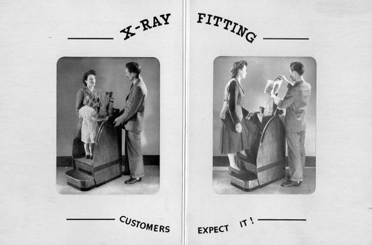 Зачем в первой половине XX века во время примерки обуви ноги просвечивали рентгеном нога, обувь, ренген