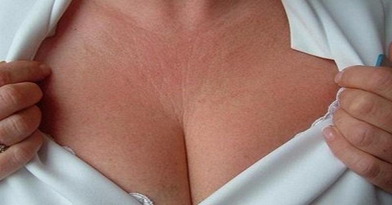 морщины на груди как убрать