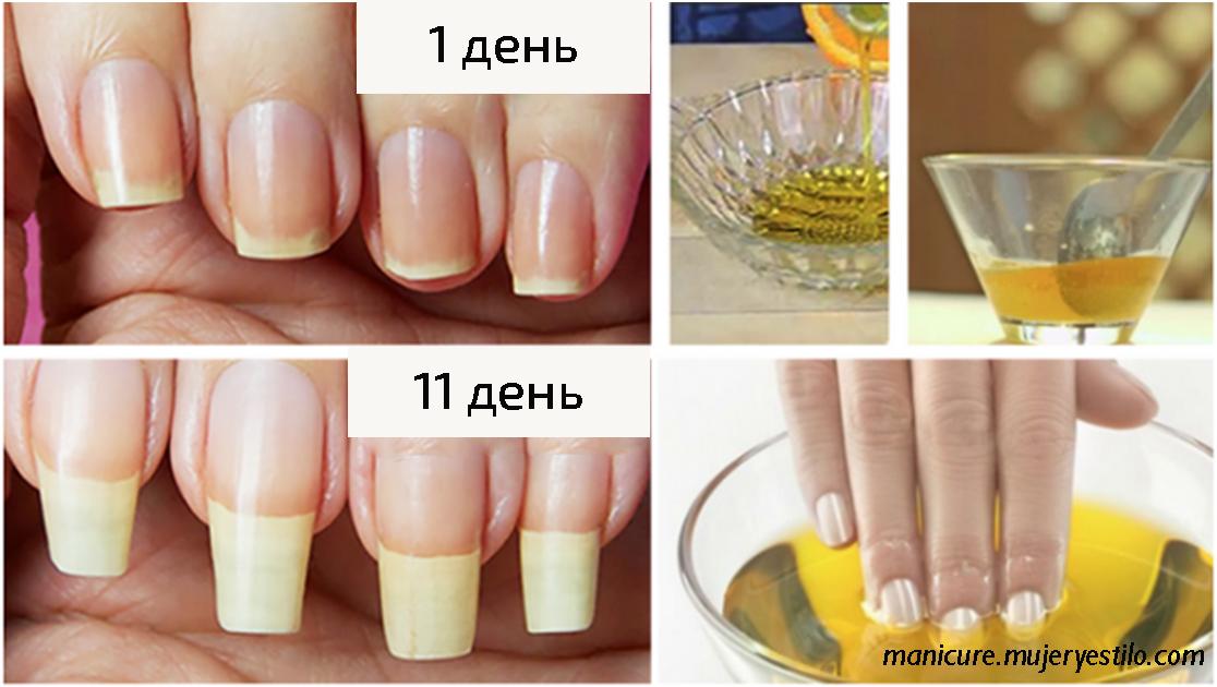 У меня все время ломались ногти... Пока подруга не посоветовала это средство!