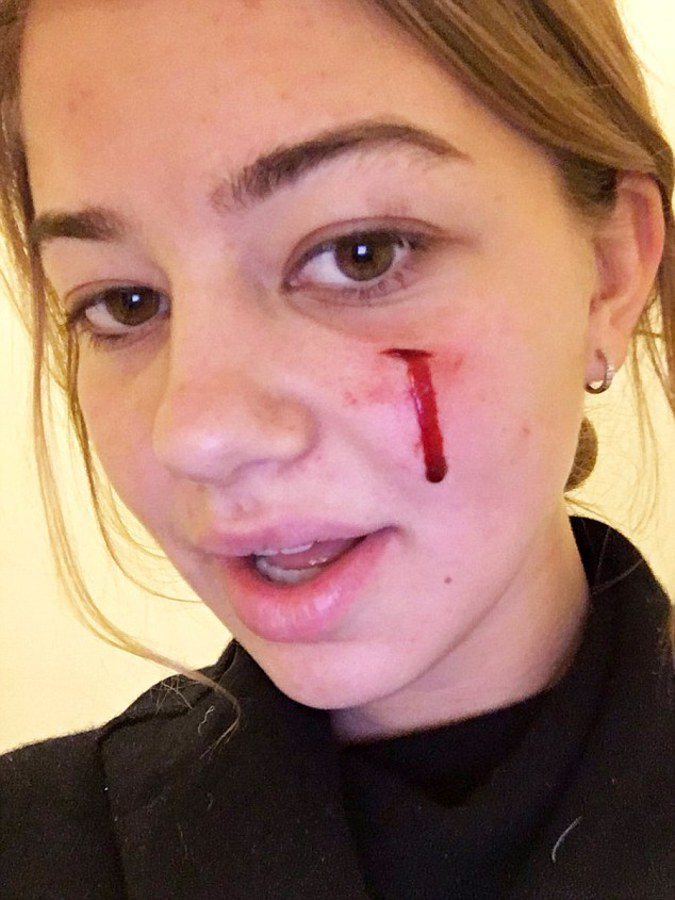 Собака Обамы укусила девушку за лицо