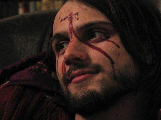 «Мальчик со стигматами»: как сложилась судьба Торнике, носившего раны Христовы