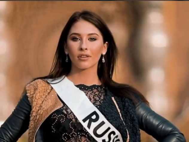 Вице-мисс конкурса супермоделей рассказала, как ее дразнили в детстве