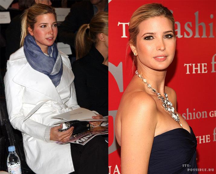 Пластическая хирургия: Иванка Трамп