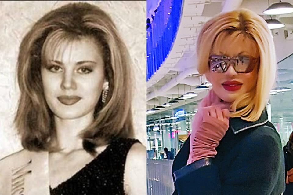Участница конкурса красоты из Сочи, облитая кислотой, перенесла 200 операций