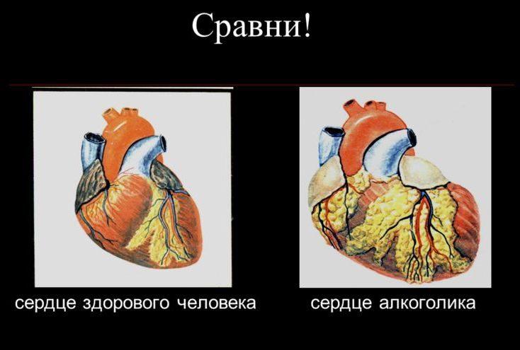 сердце человека сравнение