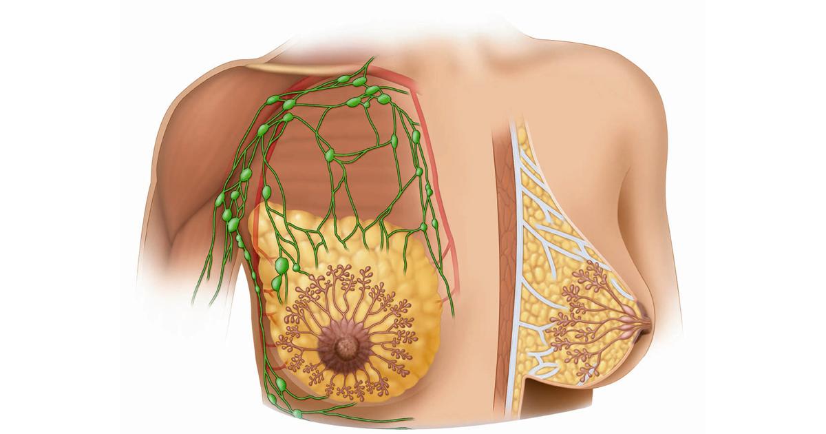 Что такое мастопатия. Учитесь распознавать симптомы