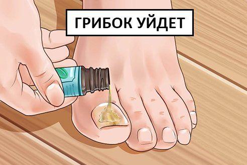 Народные методы лечения грибковых инфекций на ногтях: 7 лучших рецептов