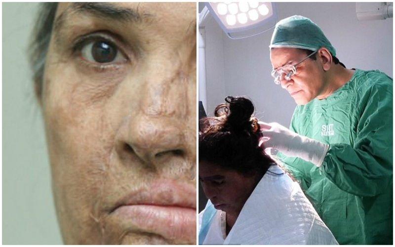 Британский хирург делает бесплатные операции жертвам кислотных атак из Пакистана врачи, жертвы насилия, кислота, кислотная атака, медицина, пластическая операция, трансплантация, фото