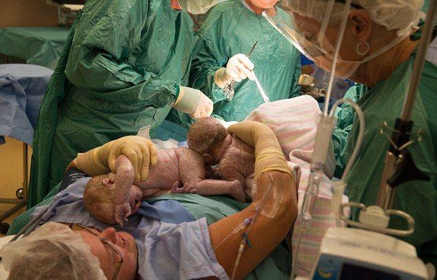 А вот сокращение матки в первые сутки кожа теряет упругость, грудь и живот обвисают больше, чем при вынашивании первого малыша.