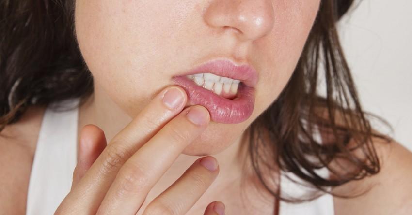 Почему образуются заеды в уголках губ