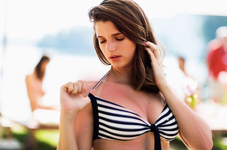 Чем помочь себе при солнечном ожоге