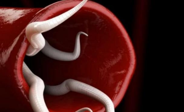Симптомы, указывающие на наличие паразитов в кишечнике