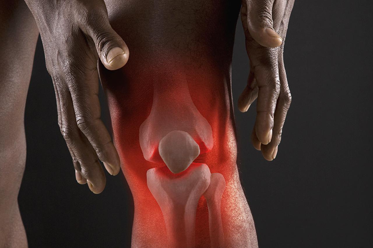 Избавляемся от болей в суставах и спине за 1 неделю