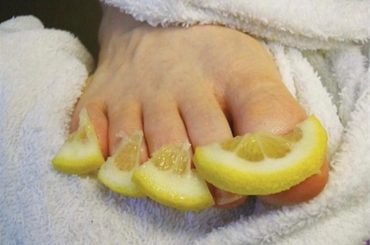 Как вылечить грибок ног у ребенка в домашних условиях