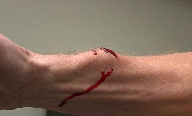 Смертельный яд змеи попадает в кровь: эксперимент ученых