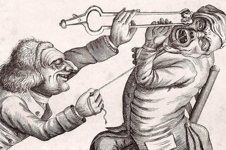 Лечить или пусть живёт? О стоматологах-зубодёрах прошлого и их поистине пыточных инструментах