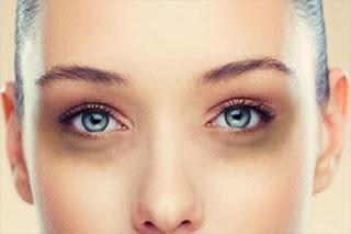 Средства от синяков под глазами